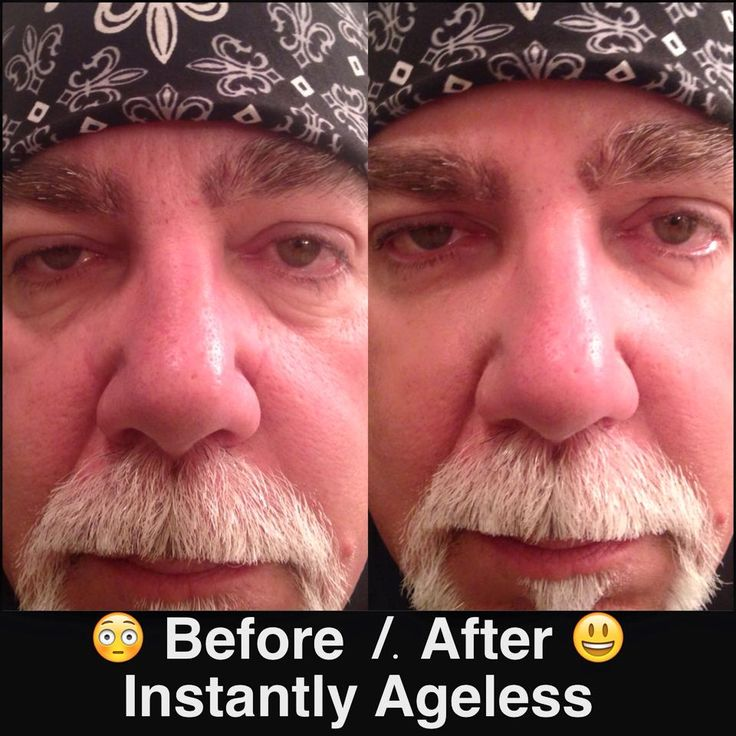 Results after using Instantly Ageless! Reduces puffiness and eye bags in 2 minutes. This product is for men or women! Order a box for $64.95 or samples $10 each