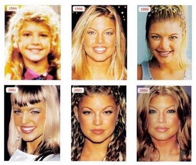 Fergie Plastic Surgery Before And After - http://www.celeb-surgery.com/fergie-plastic-surgery-before-and-after-2/?Pinterest
