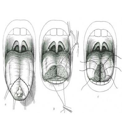 Traitement chirurgical d'un cancer de la cavité buccale