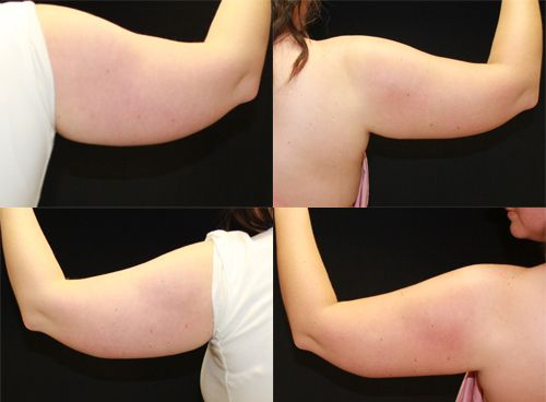 CoolSculpting Arms Before and After CoolSculpting lets you freeze the fat away!