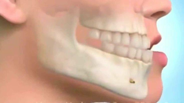 Ortodoncia en Bogota Ortodoncia Invisible y Ortodoncia con Invisalign Br...