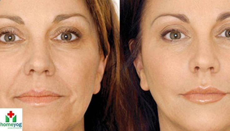 How to Fight Wrinkles – Home Remedies For Wrinkles on Face, Forehead, Ne… This video shows how to get rid of wrinkles on face using homemade anti wrinkles cream. Many of the anti-wrinkle treatments available today are either made of synthetic chemicals, use harsh substances to relax your skin, or are invasive mechanical procedures. More and more, people seeking anti-wrinkle treatments #anti-wrinklecreams
