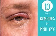 Get rid of pink eye fast at home. Next conjuctivitis remedies will help you to naturally cure and find an home relief. You will from useful tips for this infection to top pink eyes remedies that work: honey, black tea, breast milk, lemon juice, potato poultices.
