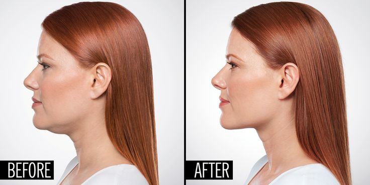Non-surgically eliminate your double chin with #Kybella.