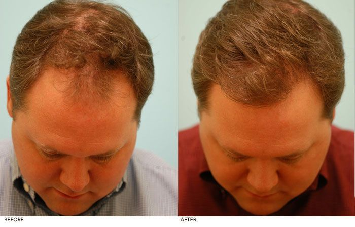 Propecia Hair Loss Pills