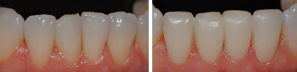 Cosmetic Teeth Bonding- before and after- in only one hour