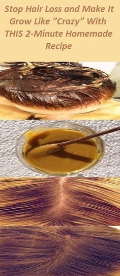 "Stop Hair Loss and Make It Grow Like ""Crazy"" With THIS 2-Minute Homemade Recipe"