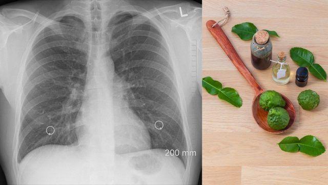Lungenreinigung: Natürliche Wege zur Entgiftung der Lunge in 2020 |  Lungenreinigung, Lunge, Reinigen