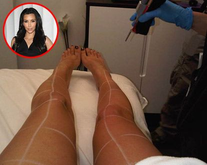 Kim Kardashian's twitter pic of her laser hair removal treatment on her legs.