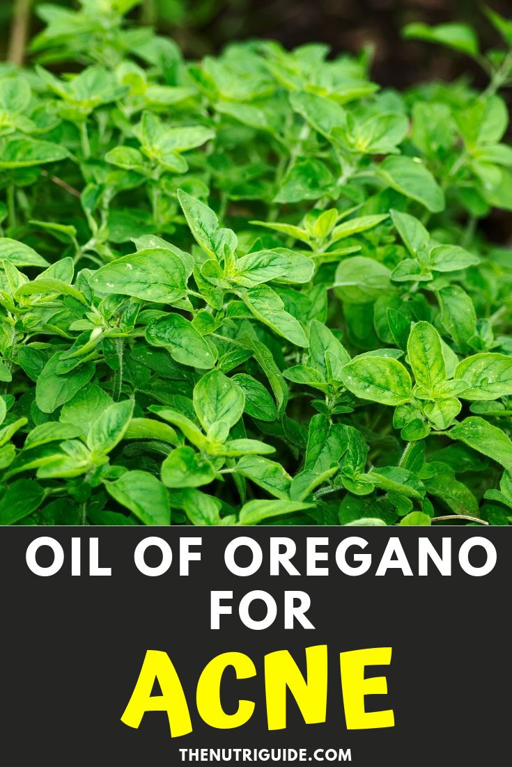 Oil of Oregano for Acne