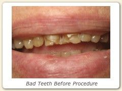 don't wait til your teeth reaches this point!