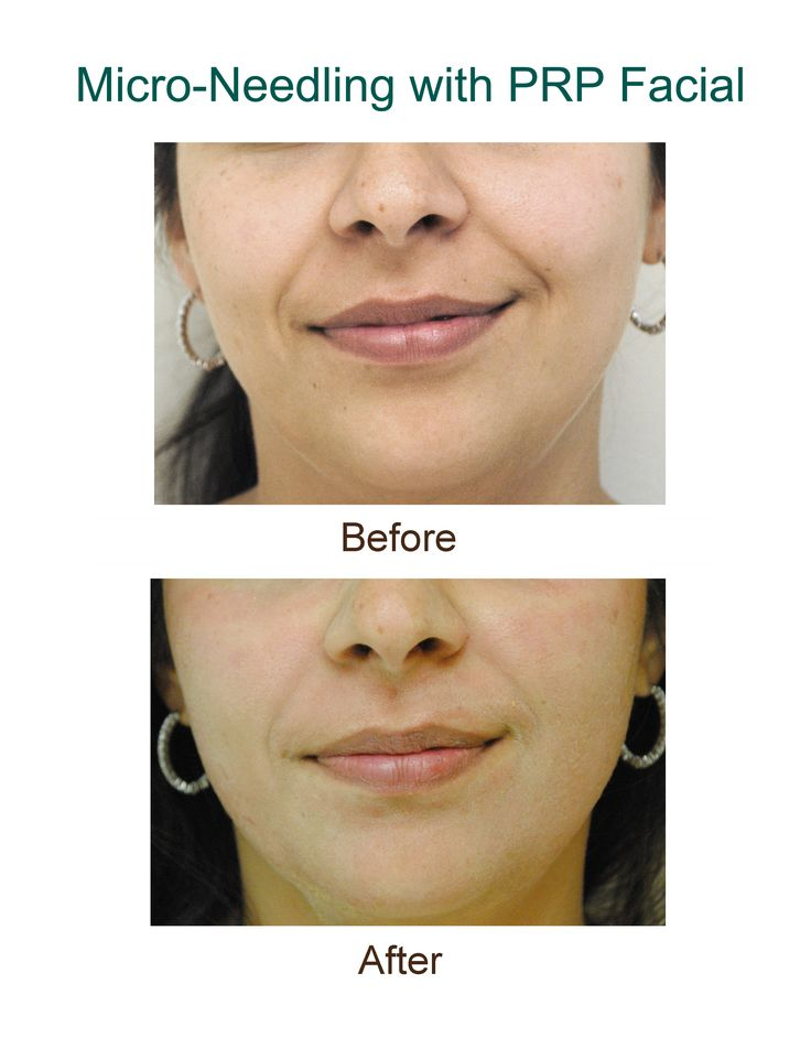 Before Amp After Micro Needling Collagen Induction Therapy