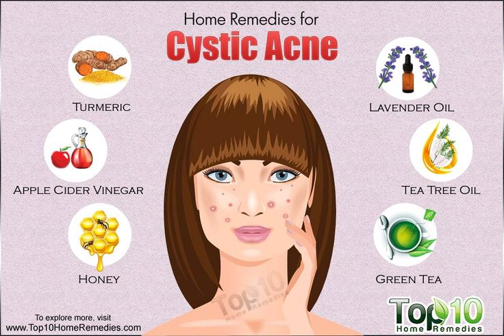 Prev post1 of 3Next Cystic acne is one of the most severe forms of acne. This type of acne feels like soft, fluid-filled lumps under the skin's surface. These large, red breakouts can be painful and can cause significant skin damage, making the likelihood of developing scars extremely high. They tend todevelop on your face,