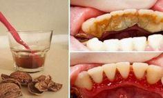 Cómo deshacerse de la placa dental, sarro, encías sangrantes y de una manera muy simple y fácil, sin dolor