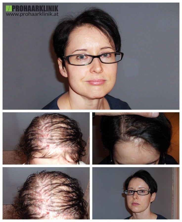 Haartransplantation Düsseldorf Frauen vohrer nachher Haarverpflanzung