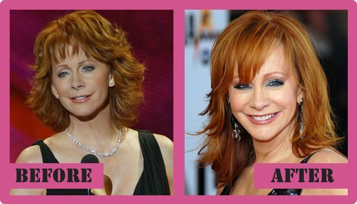 Reba Mcentire Plastic Surgery Before And After Reba Mcentire Plastic Surgery –