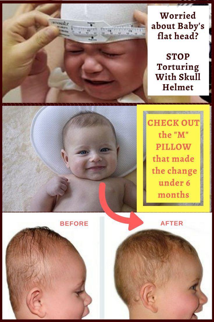 baby flat head 7 months online