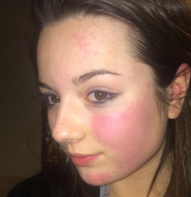 Family release selfie showing teenager's bruised face before she killed herself