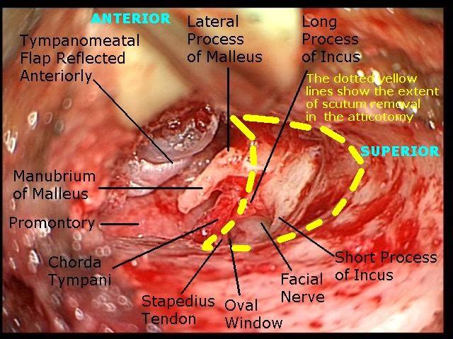 chorda tympani stapedectomy - Google Search