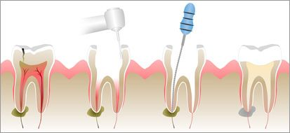 Is Root Canal Treatment painful? It relives you from the teeth pain often caused by inflammation or pulp infection.