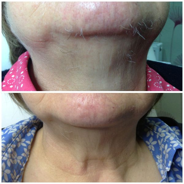 IPL Hair Removal. we have the world's most versatile laser. the Palomar can be adjusted to effectively remove Facial hair and Body hair. www.spabannockburn.co.uk