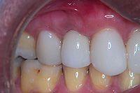Deland Implant Dentistry- Expert Dentist Near Dentist Lady Lake, Eustis, Mount Dora, The Villages, Tavares, Fruitland Park. Please visit-   www.delandimplants.com/dentisteustis-mountdora.htm