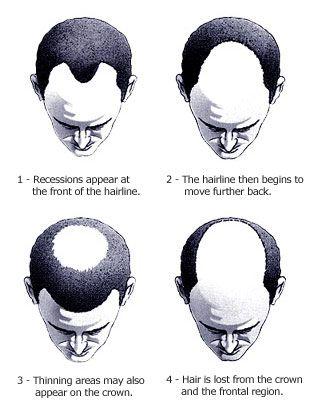 hair loss treatment Scottsdale