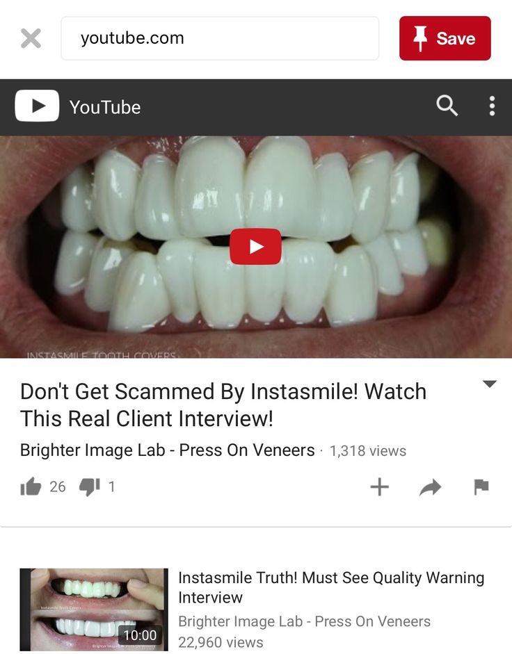 51 best images about brighter image labpresson veneers