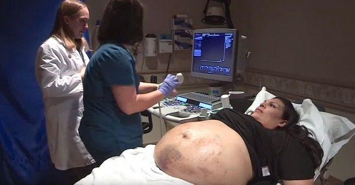 Esta mujer tenía la barriga llena de hematomas, no creerás lo que revela el ultrasonido