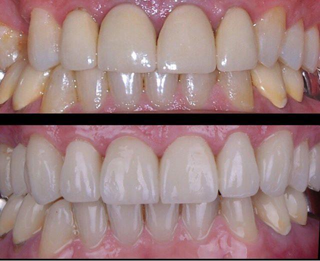 Cambio de coronas y carillas cerámicas monocromáticas y sin textura superficial, por restauraciones cerámicas tipo E-max, Se mejoró la textura de las piezas dentarías, devolviendo la naturalidad deseada,. #smiledesign #porcelain #diseño #teeth #cement #dentist #veneers #perfect #emax #life #lips #carillasdeporcelana #diseñodesonrisa #night #nikon #dentalpanama #dentallab #dsd