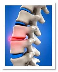 Lets make that painful disc go away by using Non- Surgical Spinal Decompression!