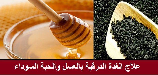 يعاني بعض الأشخاص من مشكلة الغدة والتضخم فيها ويعتبر علاج الغدة الدرقية بالعسل والحبة السوداء من أكثر الطرق أمانا في التخلص من مشكلة Food Caramel Apples Honey