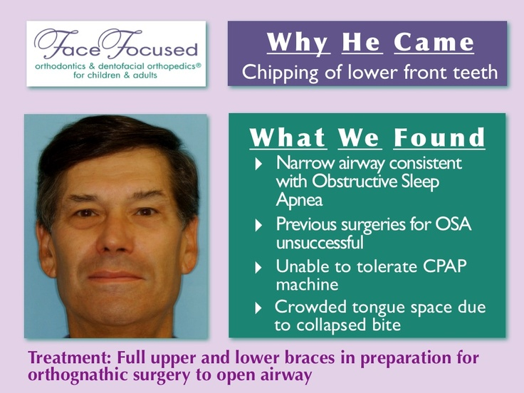 case study of sleep disorder and sleep apnea Sleep apnea, also spelt sleep apnoea, is a sleep disorder characterized by  pauses in breathing  in many cases, it is first observed by a family member  sleep apnea is often diagnosed with an overnight sleep study for a diagnosis of  sleep.