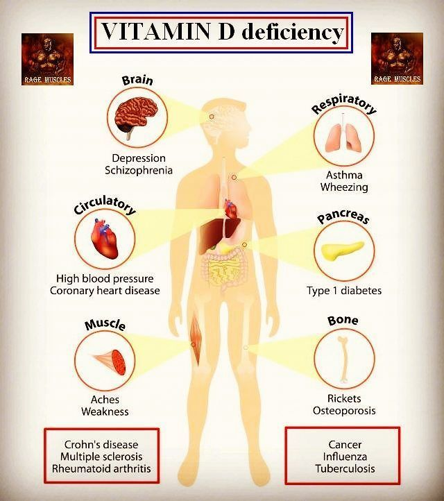 """WEBSTA @ rage_muscles - .Vitamin D, known as the """"sunshine vitamin"""", vitamin D is a vitamin you can get from food or supplements. Exposure to the sun also stimulates vitamin D production in the skin.Vitamin D serves several important functions in the body. These include:promoting calcium absorptionmaintaining normal calcium and phosphate levelspromoting bone and cell growthreducing inflammationVitamin D is essential for strong bones, because it helps the body use calcium from the d"""