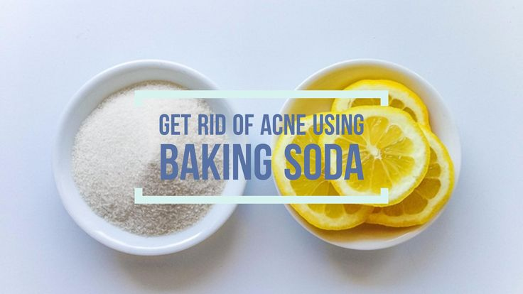 Baking soda is one of the best and cheapest treatment for acne. Here we are presenting your exactly how to use it in 5 easy ways. Let's get started.