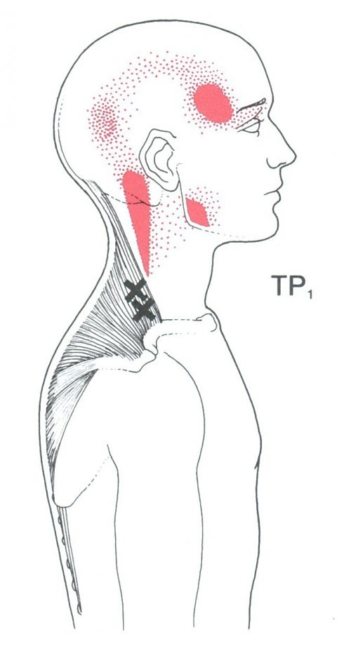 diagram of trapezius