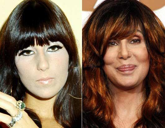 Cher Plastic Surgery Before & After Photo ============================= profgasparetto / eagasparetto / Dom Gaspar I ================================== www.profgasparetto21.wordpress.com ================================== https://independent.academia.edu/profeagasparetto ================================== http://cinemagister.pbworks.com/w/page/89742752/Prof%20EA%20Gasparetto