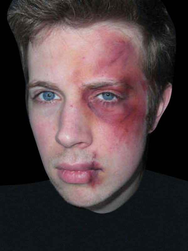 face bruise makeup - Google Search