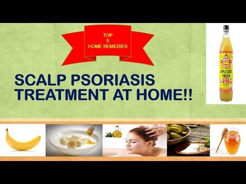 SCALP PSORIASIS TREATMENT AT HOME!! -  CLICK HERE for The No. 1 Itchy Scalp, Dandruff, Dry Flaky Sore Scalp, Scalp Psoriasis Book! #dandruff #scalp #psoriasis Perform these home remedies at home and get itch free scalp. The hair mask is my personal favorite treatment for scalp psoriasis. Do try it and let me know the results in the... - #Dandruff