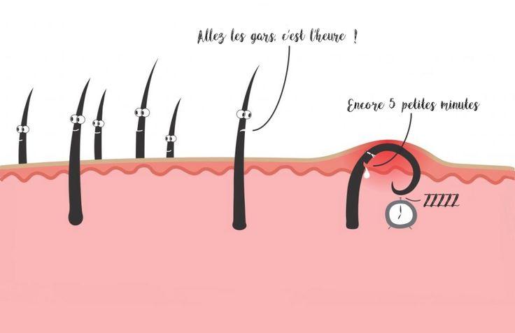 une-recette-miracle-pourse-debarrasser-des-poils-incarnes-1