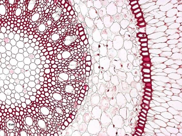 - Orchid aerial root taken using brightfield microscopy.