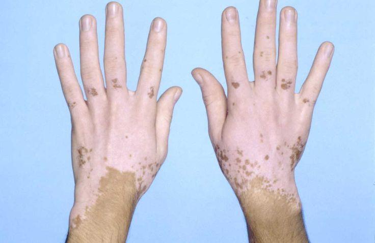 Vitiligoya Güzel Kokulu Çözüm (Lavanta)  Derideki bazı rahatsızlıkların nedeni karaciğerden kaynaklanmaktadır. Lavanta (kür şeklinde); vitiligo, sedef ve deride ileri yaşlarda oluşa yaşlılık lekelerine karşı önleyici ve bu hastalıkların tedavisinde önemli yardımcı rol oynamaktadır.