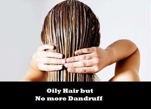 How to get rid of this Embarrassing Problem. How To Control Your Extreme Dandruff Naturally?