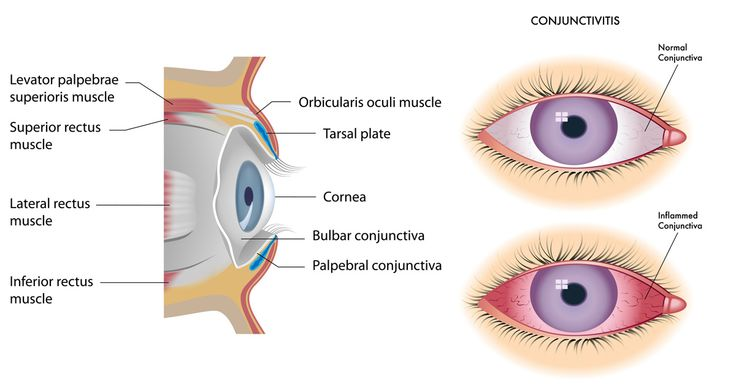 Bacterial conjunctivitis requires antibiotics treatment & can last up to a month. Allergic conjunctivitis, typically lasts throughout the allergy season.