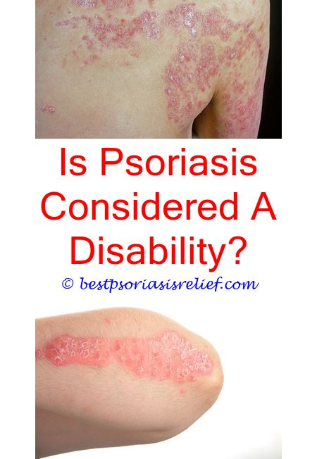 #psoriasisonhands best treatment for psoriasis on hands - micanol psoriasis.#signsofpsoriasis psoriasis nutritional deficiency mg217 psoriasis medicated multi symptom cream psoriasis hair loss pictures 5236141883