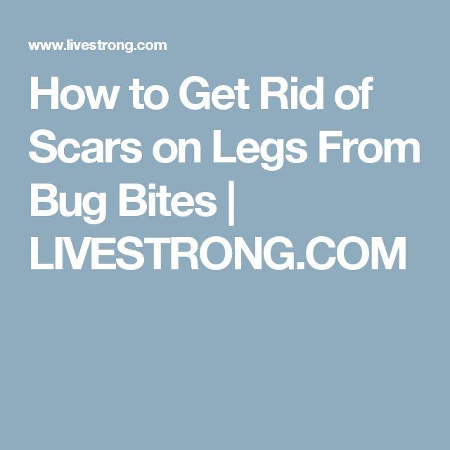best 10+ bug bites on legs ideas on pinterest | young living oils