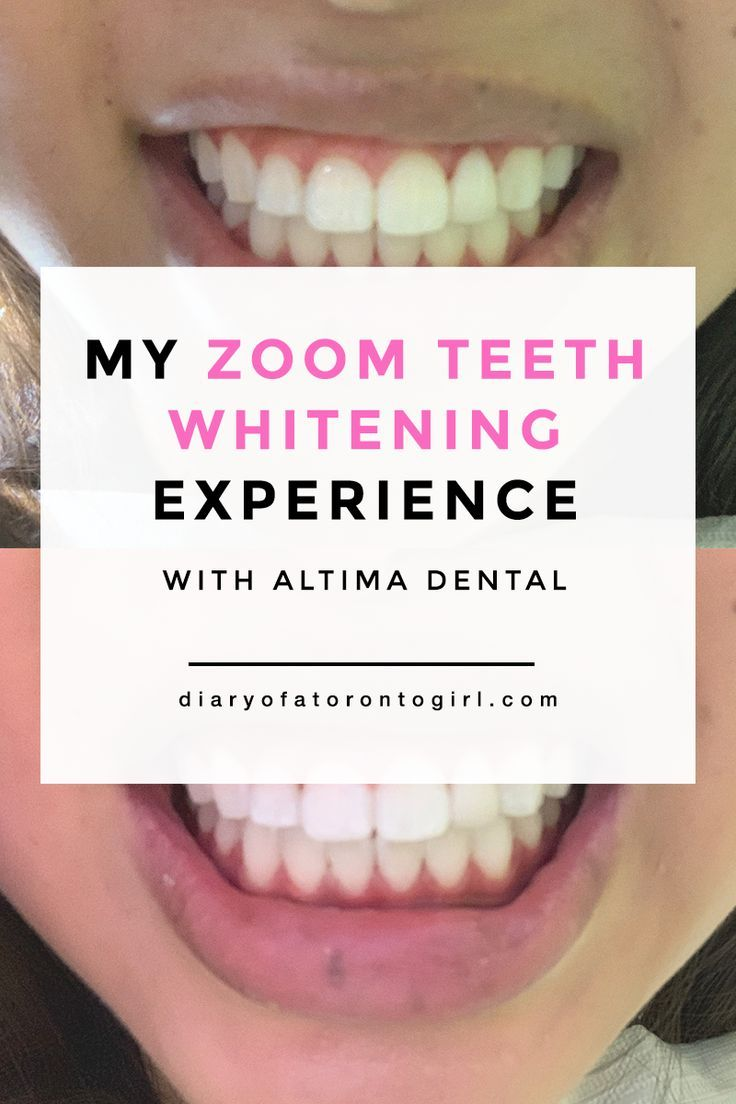 My Zoom Teeth Whitening Experience & Review with Altima Dental