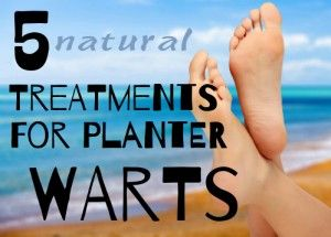 How and Why to Treat Plantar Warts Naturally (5 Ways)