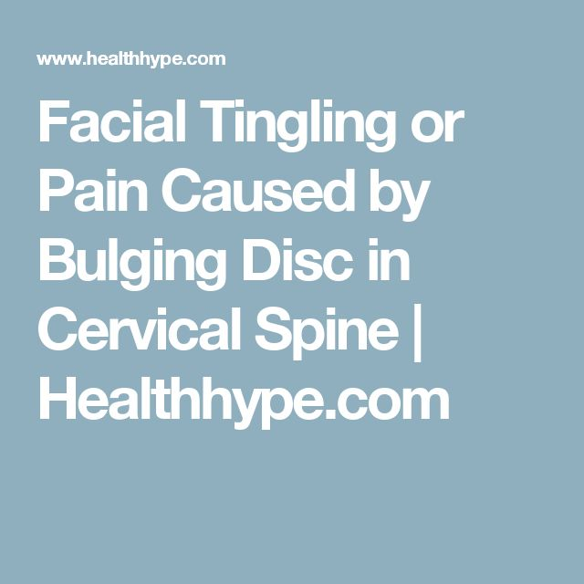 Facial Tingling or Pain Caused by Bulging Disc in Cervical Spine | Healthhype.com