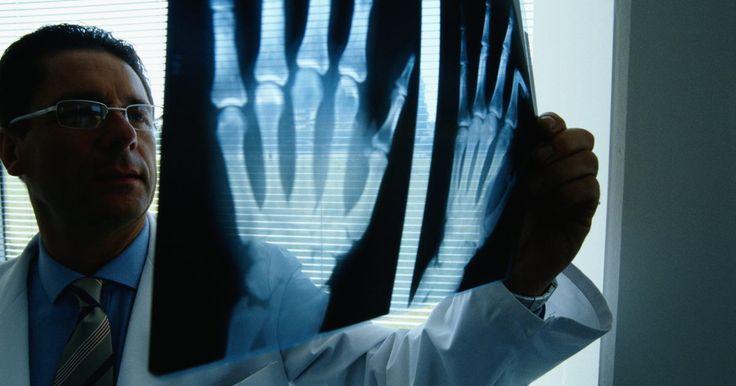 Dor no pulso e no polegar. A mão e o pulso são uma estrutura complexa feita com muitos tendões, ligamentos e nervos. Há muitos diagnósticos que podem ser feitos por um cirurgião ortopédico especializado em cirurgia de mão. Alguém que estiver sentindo dor no pulso ou no polegar precisa ter uma ideia melhor do que este problema pode ser e quando é melhor procurar ajuda médica ...